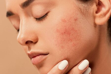 Home Remedies And Effective To Fight Acne
